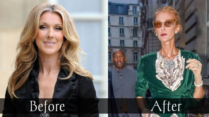 Celine Dion Weight Loss Before and After