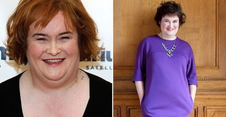 Susan Boyle Weight Loss: Diet, Surgery, Before & After [2021]