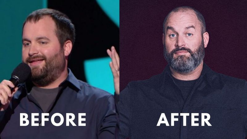 Tom Segura Before after of Weight Loss