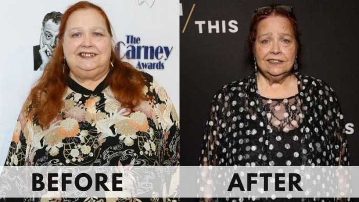 Conchata Before and after weight loss