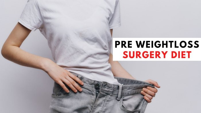 Pre Weight Loss Surgery Diet [Complete Guide] – 2021