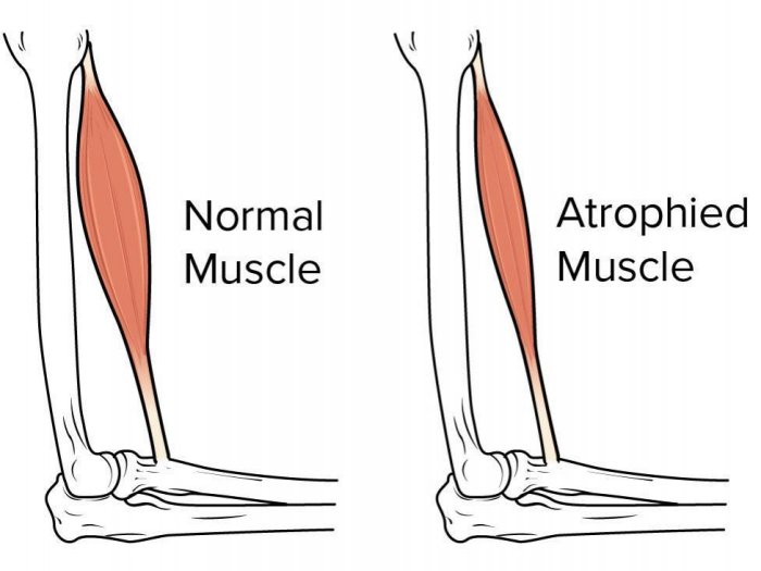 Atrophy Muscle