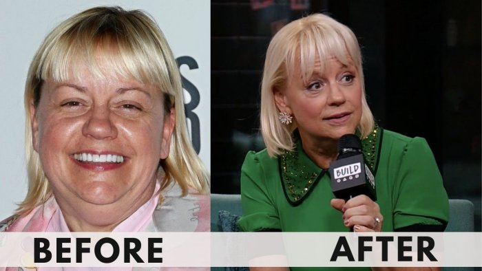 Sherry Yard Before and after weight losss